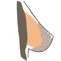 borstvergroting-op-spier